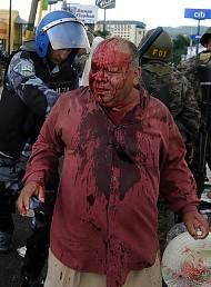 Fotos después del golpe en Honduras. Web solidaria